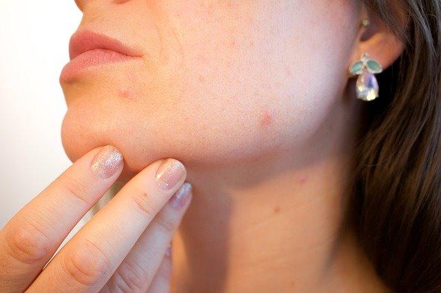 Cannabis to cure acne-Cannabis para curar el acné